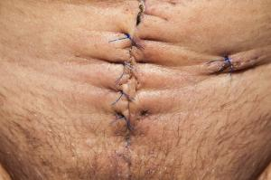 Cicatrice ventre
